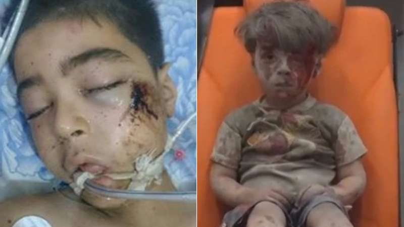 brother of Omran Daqneesh dead after Assad regime airstrikes in Aleppo